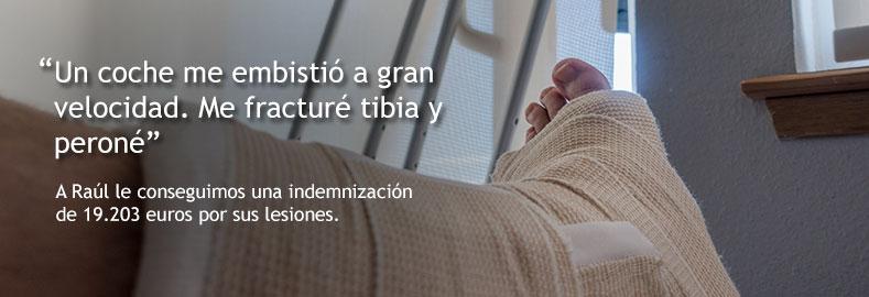 indemnizaciones por fractura de tibia y peroné
